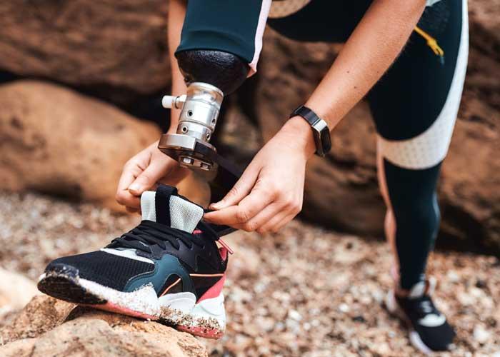 moderne technologie voor prothesevoet